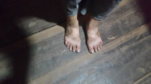 My feet weren't pretty after the dusty 15k.